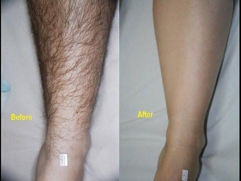 how to remove unwanted hair permanently at home naturally