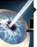 CODET Vision ofrece LASIK y la cirugía láser para los ojos y otras operaciones de cirugía ocular para corregir la visión en Tijuana, México, cerca de San Diego, California. Sus  oftalmólogos expertos se especializan en la cirugía de cataratas, miopía, hipermetropía, astigmatismo y otras enfermedades oculares. Para más detalles, visite: http://www.codetvision.com/default-sp.aspx