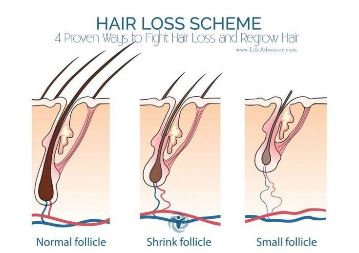 Hair loss can be a real drag, to say the least. Not only is it frustrating, it can really do a number on your self-esteem. How to fight it and regrow hair? You may even be tempted to take extreme a…