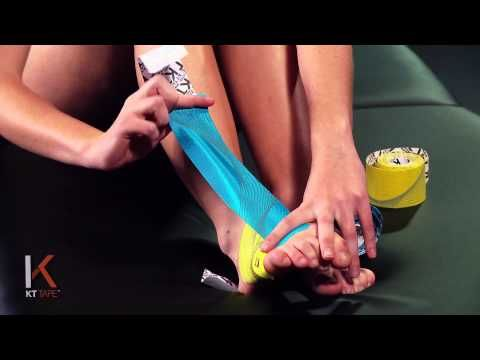 17 Best images about Kinesiology Tape on Pinterest ...