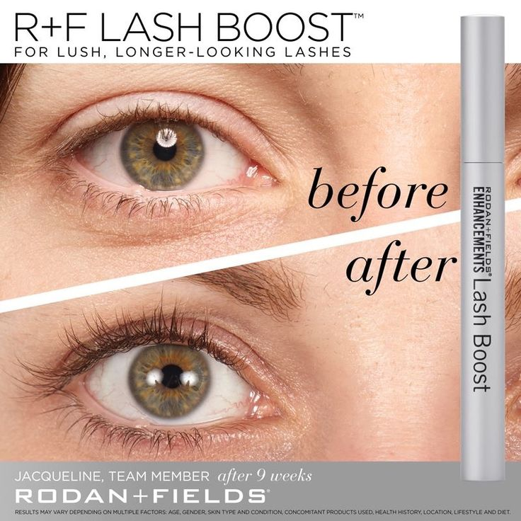 """After using Lash Boost for two months, I really began to see a difference. My friends and co-workers began to comment on how beautiful they were. I don't usually wear makeup so having longer-looking, fuller-looking lashes that are 100% real made me feel extra confident!"" –R+F Team Member, Jacqueline.  Login to Pulse Share, download and ""SHARE"" these #RFLashBoost real results with your existing and potential PCs today: http://share.rodanandfields.com."