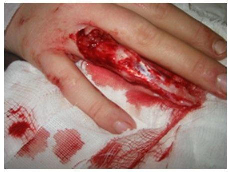 Ring Avulsion Injury Wiki