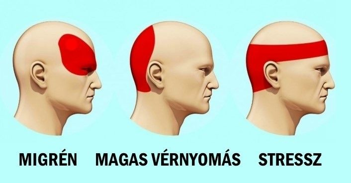 Így szabadulhatsz meg a fejfájástól 5 perc alatt pirulák nélkül! Amikor fáj a fejed, és nincs kéznél gyógyszer, teljesen reménytelennek tűnik a...