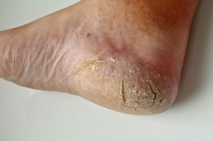Craig's heel with psoriasis before using Skincerity
