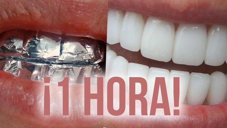 Blanqueamiento dental: ¡BLANQUEA TUS DIENTES Con papel aluminio en 1 hora!
