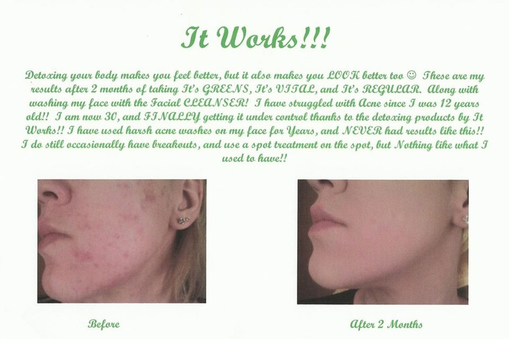 it works facial wrap instructions