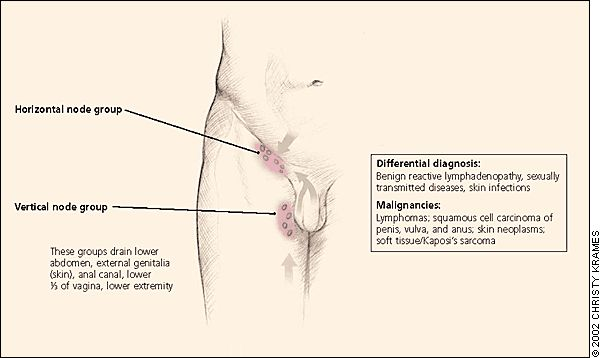 Local lymph drainage pattern, groin | Lymphadenopathy and Malignancy - American Family Physician