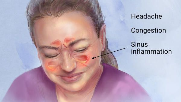 Here are 7 Easy Ways to Treat Sinus ProblemsNaturally! Sinus problems are one of the most common healthy problems of these days, especially at cold weather conditions. If you want to relief from sinus pain and infections, you have to try these 7 ways to treat sinus problems naturally. The nose is consisting of complex […]