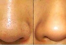 Des points noirs sur le nez ? C'est courant, même chez les hommes. N'est-ce pas, Messieurs ? Que vous soyez homme ou femme, que vous ayez des points noirs sur le nez ou ailleurs sur le visage, cec...