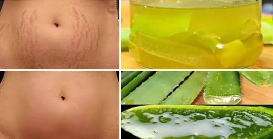 Gel di aloe vera e olio di cocco contro le smagliature | Rimedio Naturale
