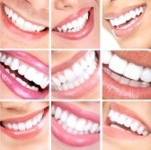 Smile and teeth. stock photography
