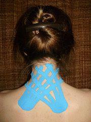 ¿Qué es el vendaje neuromuscular? #salud http://blgs.co/0GVC12