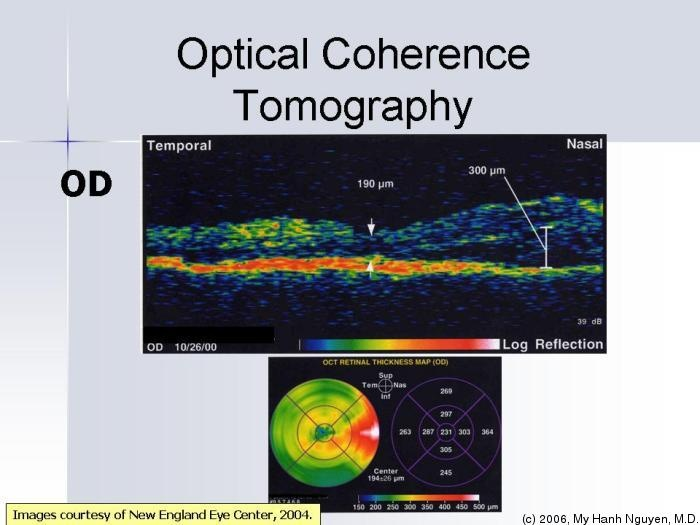 Global Markets and Technologies for Optical Coherence Tomography (OCT)  http://www.bccresearch.com/report/optical-coherence-tomography-hlc097a.html