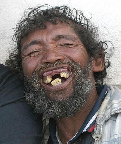 teeth...........