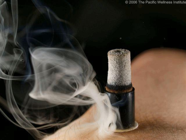 Pensieri & Parole: La Moxibustione e le patologie che si possono cura...