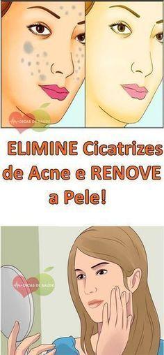 Fácil e Barato – 2 Receitas Caseiras Para ELIMINAR Cicatrizes de Acne e RENOVAR a Pele! #dicasdesaude, #fashion, #fashion, #curanatural, #dieta, #dietadetox, #emagrecer, #beleza, #adelgazar