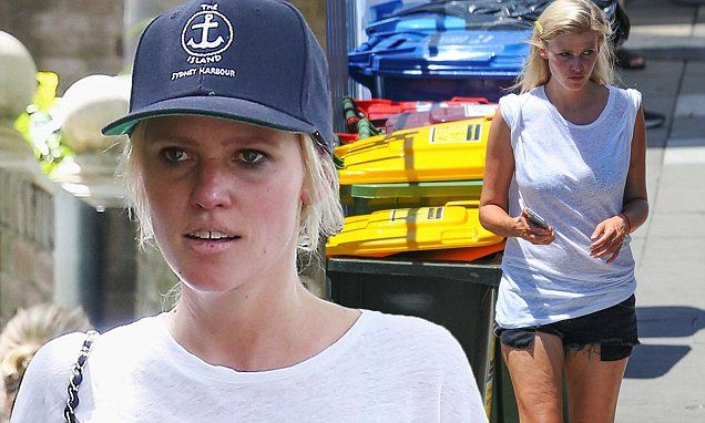 Lara Stone shows off her sunburnt face in Sydney
