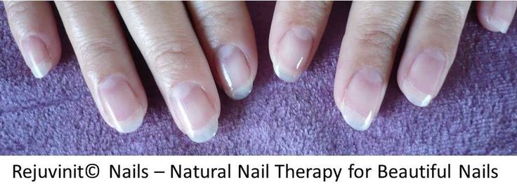 Perfect nails with Rejuvinit© Nail Oil after sustaining 3rd degree burns to hands. Buy online www.healing-oil.co.za // www.rejuvinit.com