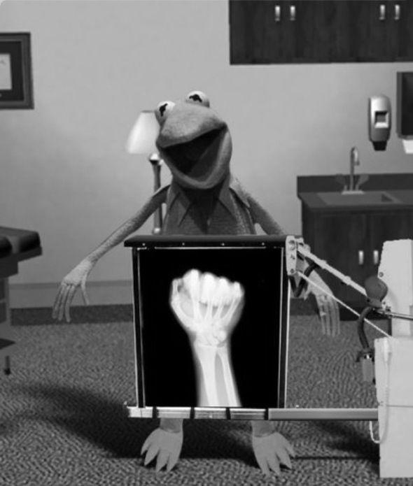 Kermit's X-ray~♛