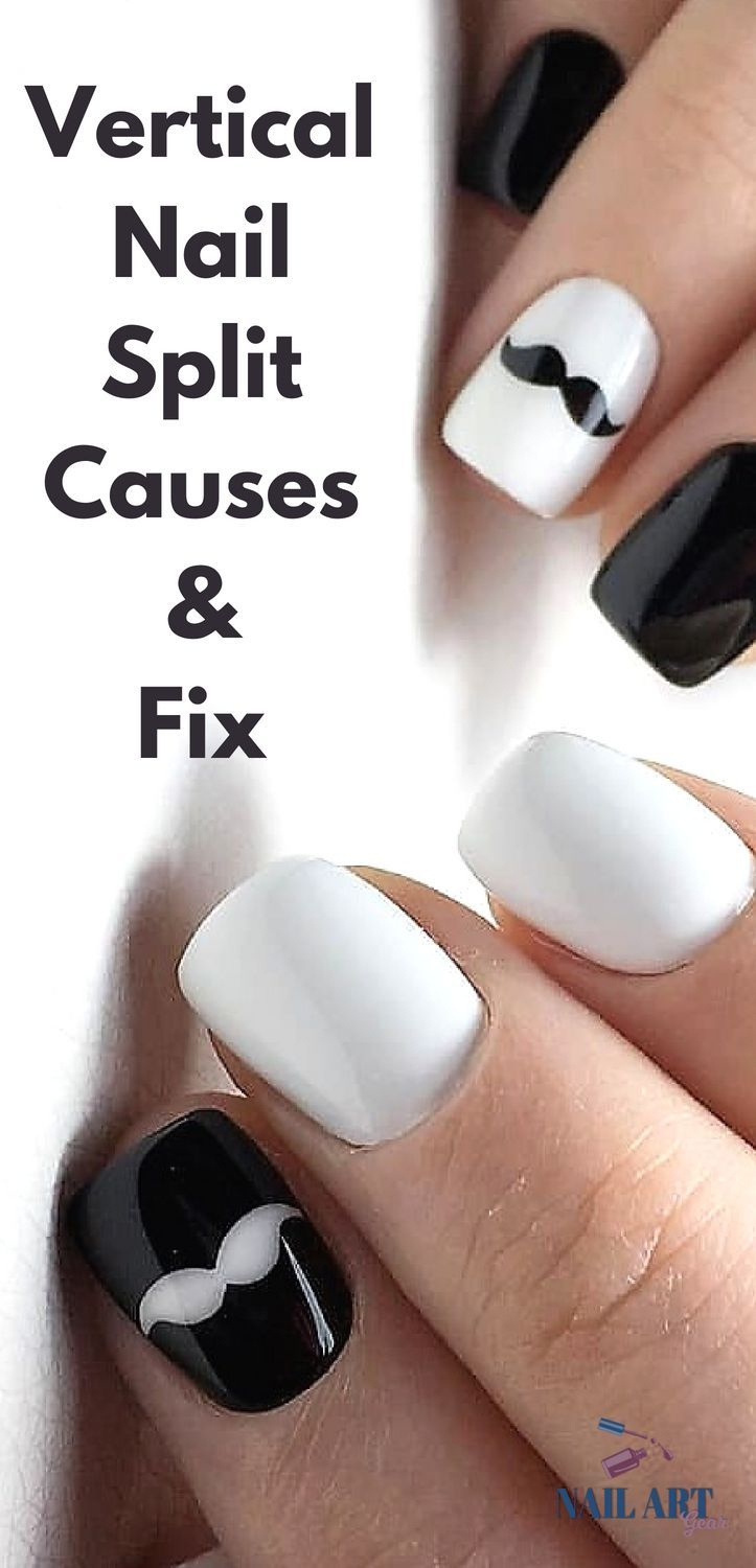 Horizontal and Vertical Split Nails Causes and Fix | Nail Art ...