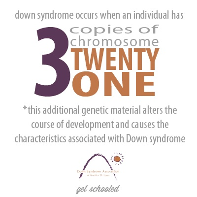 Facts about Down Syndrome