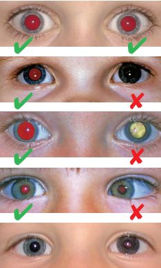 These photographs depict the asymmetry or  absence of red reflex that can occur in several serious eye conditions, including retinoblastoma. Red reflex examination is essential at post natal, 6-week and  routine development examinations, and at any  consultation where a parent is anxious about their  child's eyes, vision and/or eye appearance.