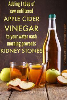 Best Natural Way To Remove Kidney Stones