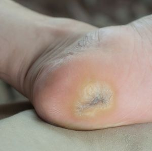 Poison Painful Plantar Warts With Peculiar Remedies - The People's Pharmacy®