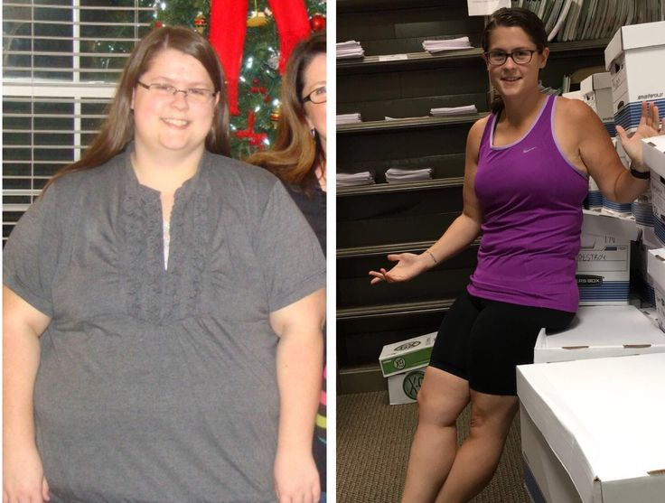 Laser weight loss treatment side effects photo 6