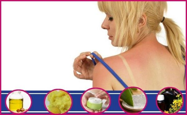 Home Remedies to Treat Sunburn Skin Care