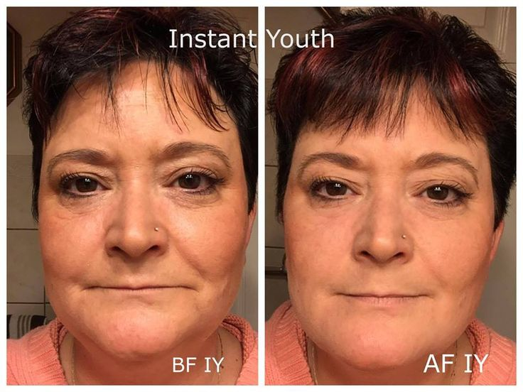 This is Lisa she applied Instant Youth Over her make up to demonstrate  there is still a difference under or over  this is incredible how fantastic Instant Youth is   http://harmonysbalance.instantyouth.com/?SOURCE=pin