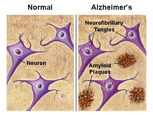Purpose in Life and Alzheimer's