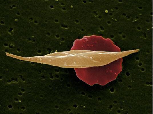 Hier sind zwei rote Blutkörperchen zu sehen. Das vordere ist allerdings von Sichelzellenanämie betroffen und weist die für diese Erkrankung typische Form auf.  http://www.gmx.at/magazine/wissen/spektakulaere-wissenschaft-9198530