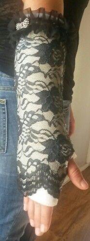 Broken arm cast
