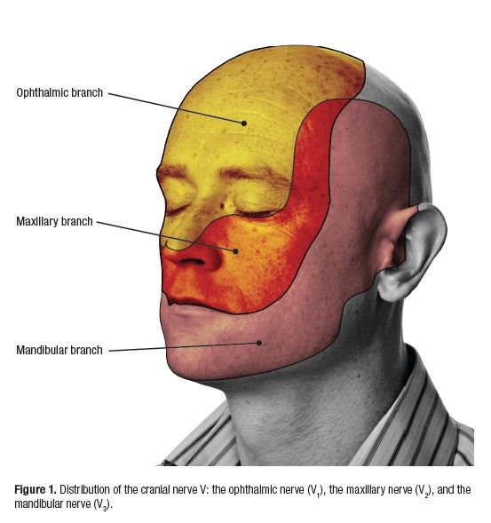 Distribution of the 5th Cranial Nerve: Disorders of the Maxillary and Mandibular Branches Can Present as a Toothache Causing Patients to Seek Dental Treatment.