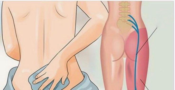 douleur sciatique : Le nerf sciatique fait partie des plus grands nerfs du corps, il part de la partie inférieure de la colonne vertébrale, en passant par les fesses et jusqu'au pied.
