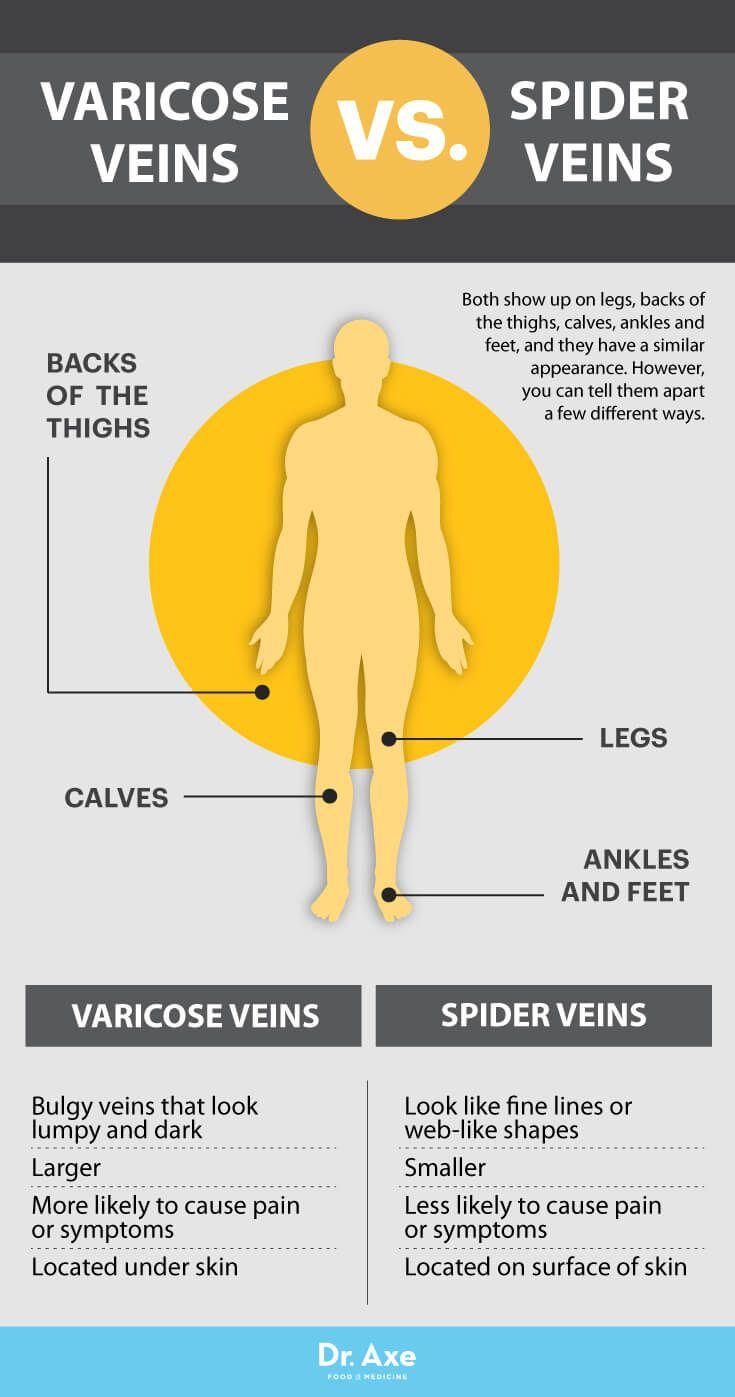 Varicose veins vs. spider veins - Dr. Axe http://www.draxe.com #health #holistic #natural