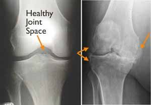 (Left) In this x-ray of a normal knee, the space between the bones indicates healthy cartilage (arrow). (Right) This x-ray of an arthritic knee shows severe loss of joint space and bone spurs (arrows)