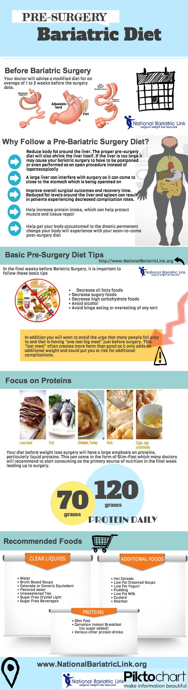 how to shrink your liver before gastric sleeve surgery