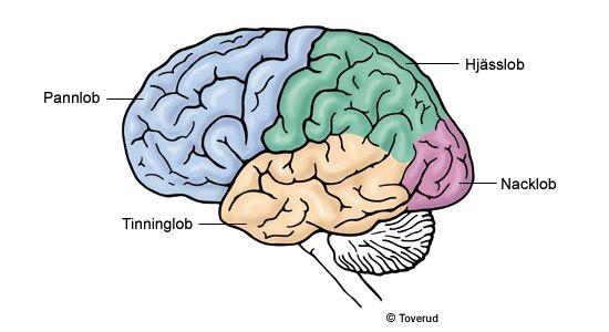 Demens - Alzheimers sjukdom - 1177 Vårdguiden - sjukdomar, undersökningar, hitta vård, e-tjänster.  Hjärnlober