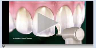 Anterior Composite Fillings White Dental Fillings Tooth Colored Fillings
