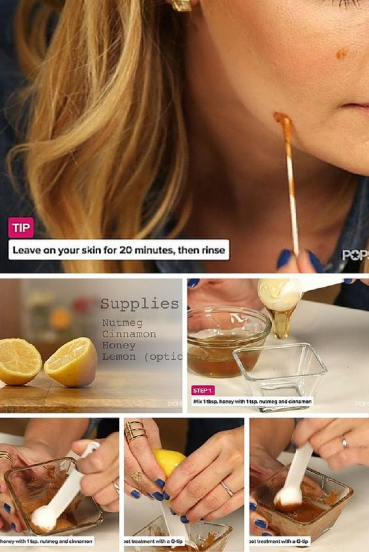 DIY Remedies for Acne Scars and Dark Spots - 16 Proven Skin Care Tips and DIYs to Incorporate in Your Spring Beauty Routine