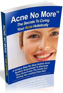 Natural Acne Cure that Works!