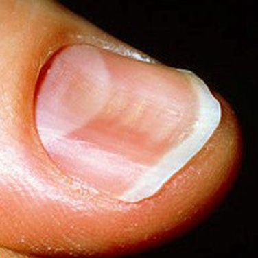 Watch out for these changes to your fingernails. http://greatist.com/live/what-nails-reveal-about-health