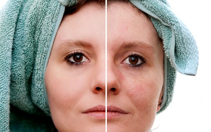 brown spots removal
