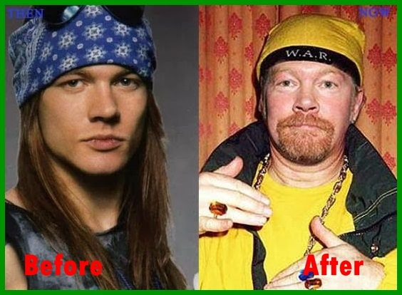 Axl Rose Surgery Face Plastic Surgery Disaster Before And After Pictures