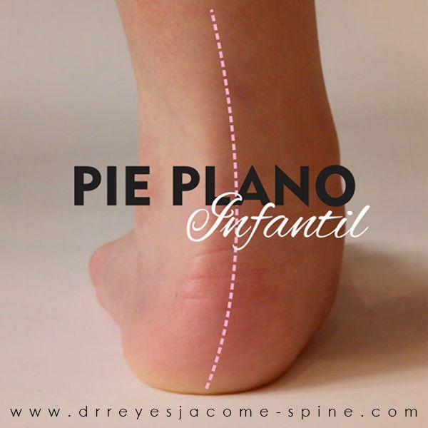 Los #pies no son planos, al menos no deberían serlo. En realidad, tienen tres arcos que dan apoyo a los huesos de los pies y los tobillos, así como ayudar a mantener las articulaciones del pie correctamente alineados y funcionales. Estos huesos y articulaciones no se fijan en una posición permanente. El andar y jugar permite que el pie y el tobillo respondan y reaccionen a las muchas irregularidades en las superficies donde el niño camina. El pie y el tobillo, así como el resto del cuerpo…