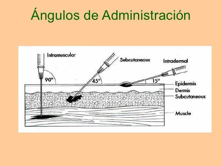 tipos de inyecciones