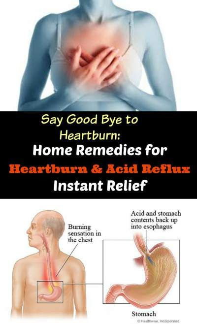 Home Remedies for Heartburn & Acid Reflux Instant Relief 2