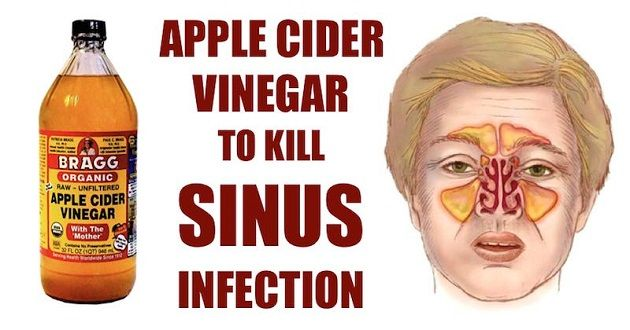 A sinus infection, also known as sinusitis, is an inflammation of the tissue lining of the sinuses. Healthy sinuses are filled with air, but when blocked, germs can grow within and cause an infection. Symptoms of sinusitis include fevers, facial pain, and headaches while the most common causes include allergic rhinitis, common cold, deviated septum,Continue Reading